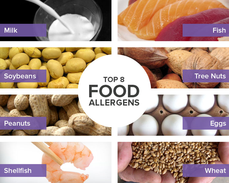 Everything You Should Know About Food Allergies | Big 8